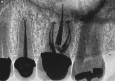 Maxillary Molar - 5 Canals
