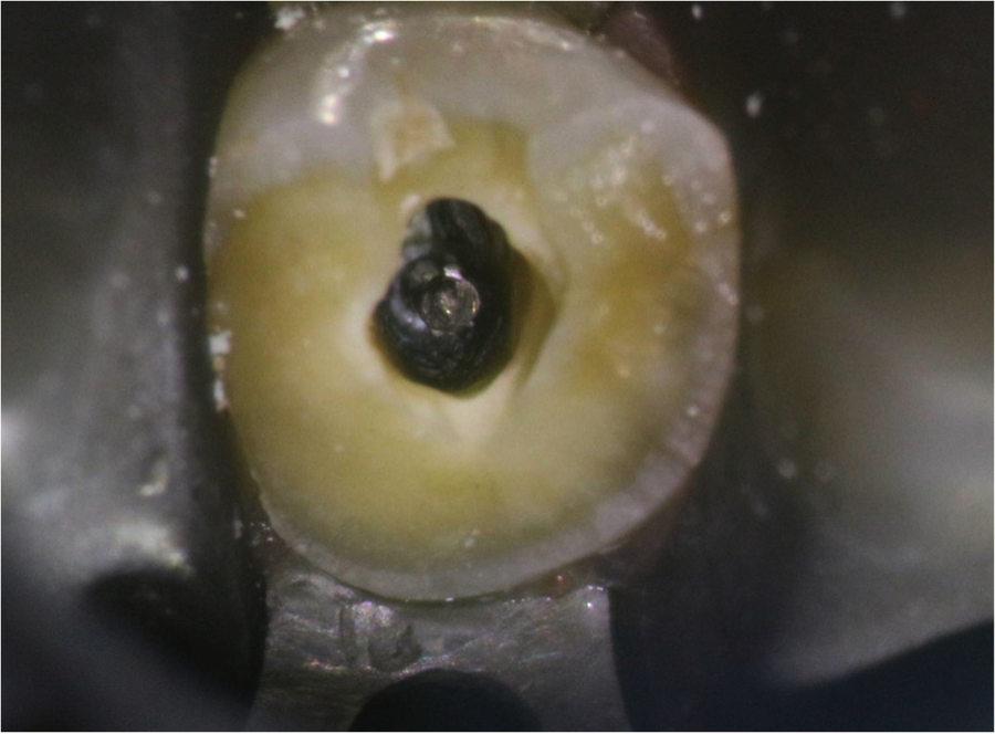 Figure 2: silver point within the root canal